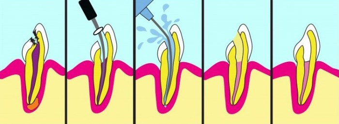 боль в зубе, корневой канал