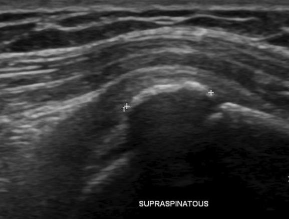 Кальцифицирующий тендинит сухожилия надостной мышцы