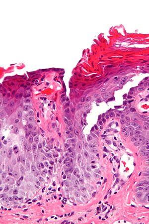 Болезнь Гровера (преходящий акантолитический дерматоз)
