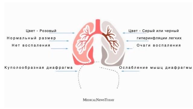 Легкие курильщика и здорового человека - отличия