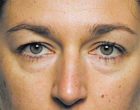 cum de a elimina grăsimea sacului de ochi