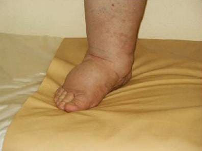 a térd artrózisáról