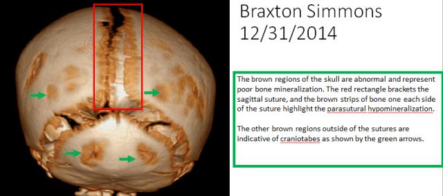 Braxton's skull