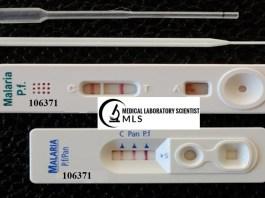 Malaria Antigen Test Results
