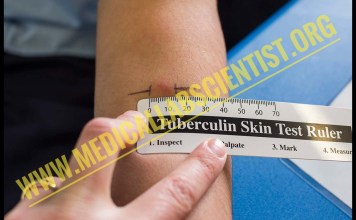 Mantoux Tuberculin Skin Test