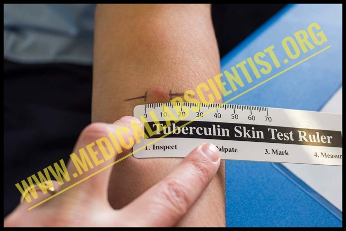 Mantoux Tuberculin Skin Test