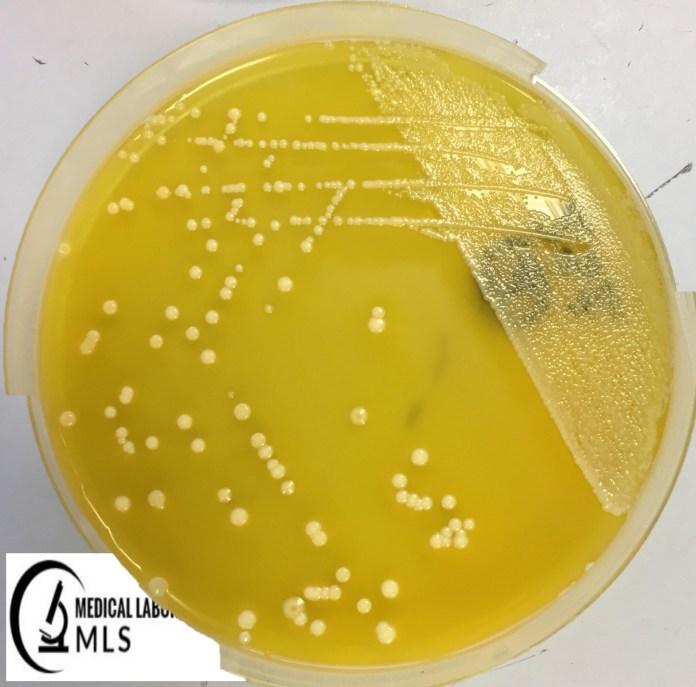 E.coli Growth on XLD Agar