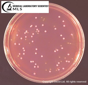 E.coli Growth on Sorbitol MacConkey Agar
