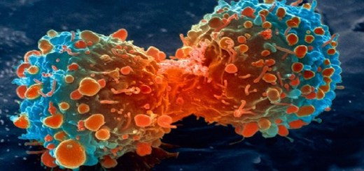 lung-cancer-cell-dividing-article-__v400248237