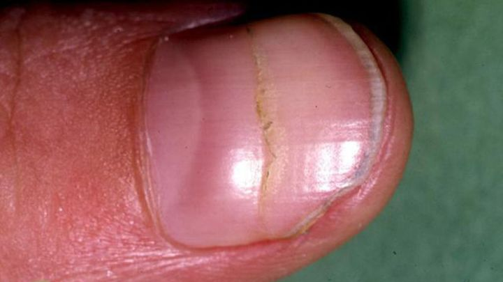 642x361_black_line_on_nail_pictures-slide_1