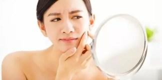 Acne-Treatment-Drug-Accutane