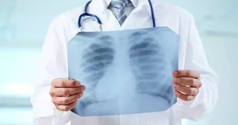 heart surgery patients