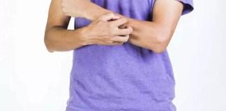 psoriasis diagnosis
