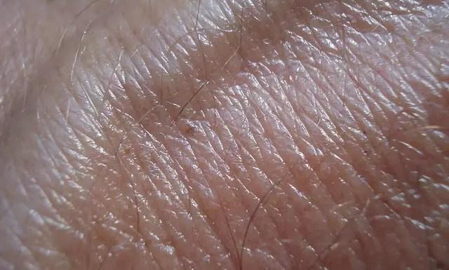 where does skin cancer begin