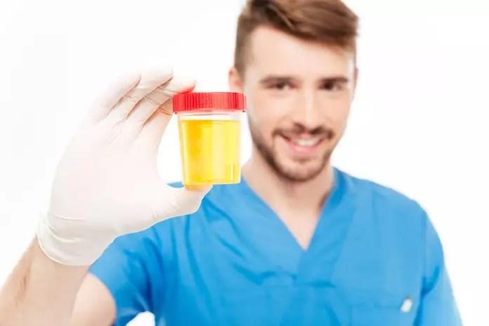 urine test for prostate cancer