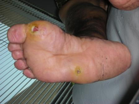 foot callus pictures