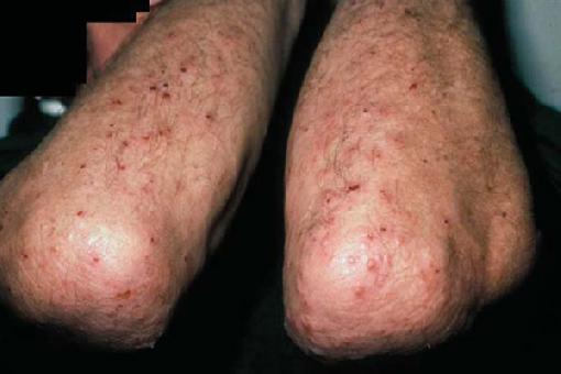 Image result for dermatitis herpetiformis