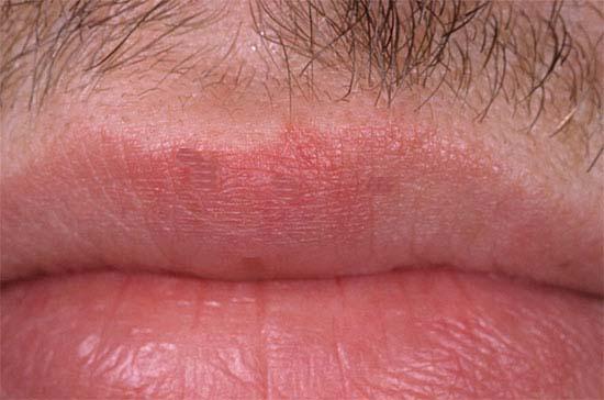 Warts on lip
