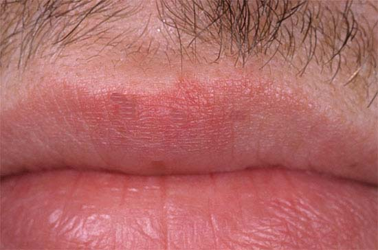 Herpes Natural Treatment Review