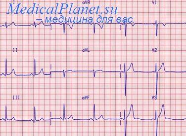 ЭКГ при приступе стенокардии. Диагностика нестабильной ...