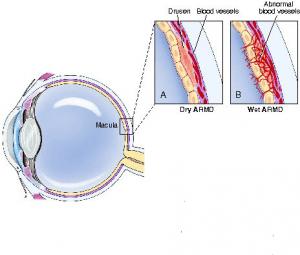 age -realted-macular-degenerationn