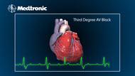 Video - What is Bradycardia