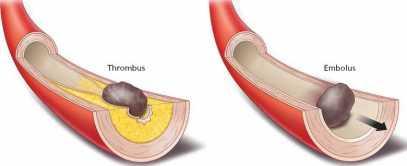 Medical Terminology Quiz: Blood Clots