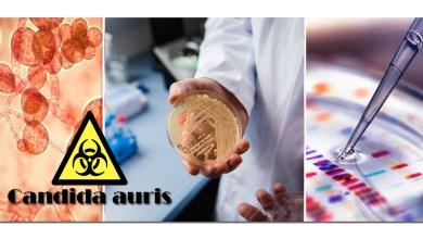 Photo of الكنديدا أوريس: جرثومة جديدة مقاومة للأدوية تنتشر في المستشفيات ومرافق الرعاية الصحية في العالم