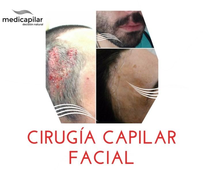 cirugia-capilar-facial