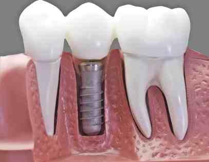 Medicare Cover Dental Implants
