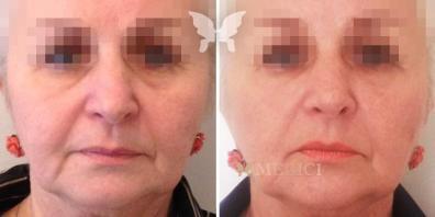Фото результатов: через 2 недели после процедуры