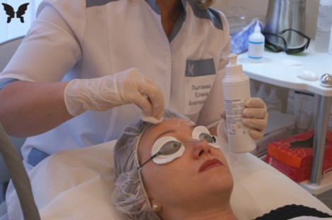 Лазерное лечение пигментации кожи