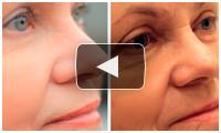 Глубокая лазерная шлифовка кожи лица на аппарате UltraPulse в клинике MEDICI