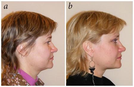 Рис. 7. Пациентка К., 42 года. Вид до вмешательства (а) и через 9 месяцев после эндоскопического темпорального лифтинга и липосакции подподбородочной области и передней поверхности шеи (б)