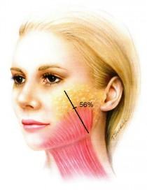 Рис.5. Распространение щечного отдела платизмы на лицо