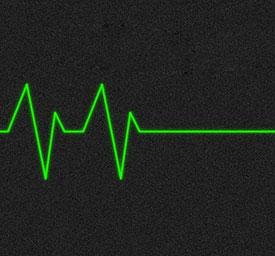 Hartstop - oorzaken