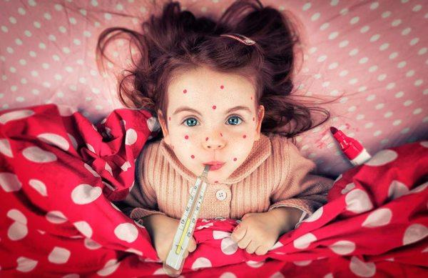 Краснуха – симптомы, фото, причины, лечение и профилактика ...