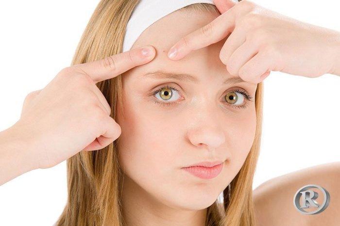 web-acne
