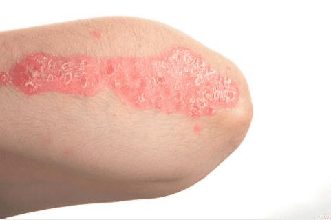 eczema 02