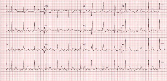 Eletrocardiograma - Flutter atrial BAV BRD - Masculino 68 anos