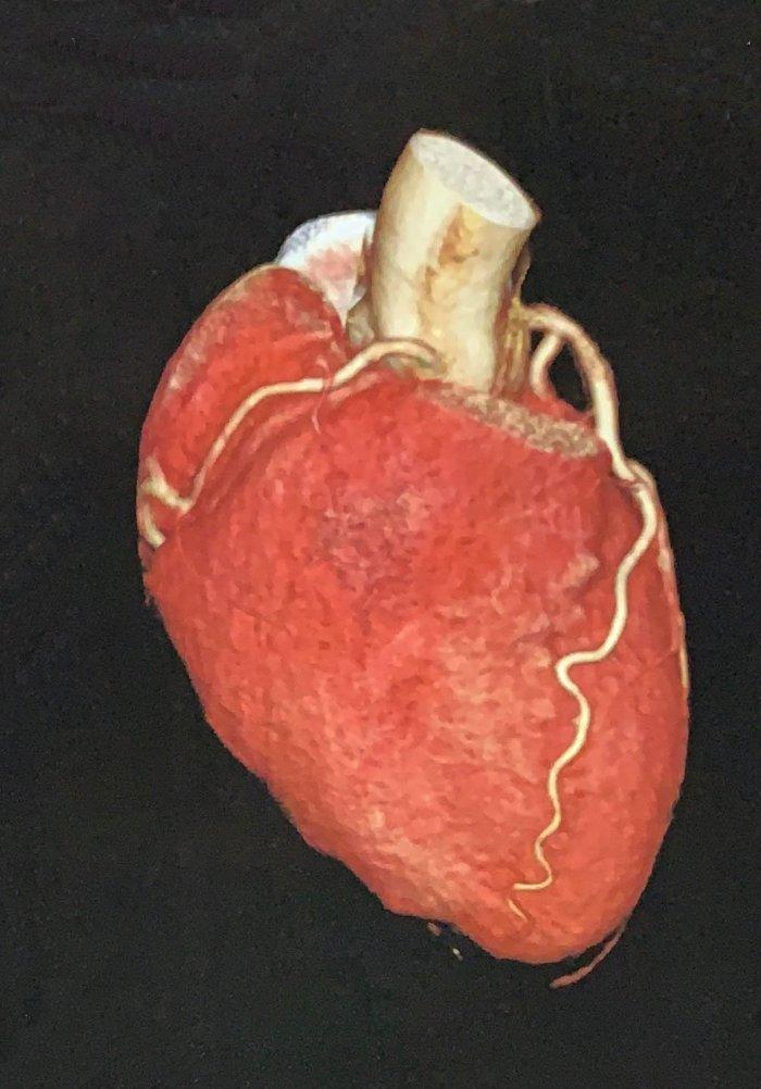 AngioCT de coronárias