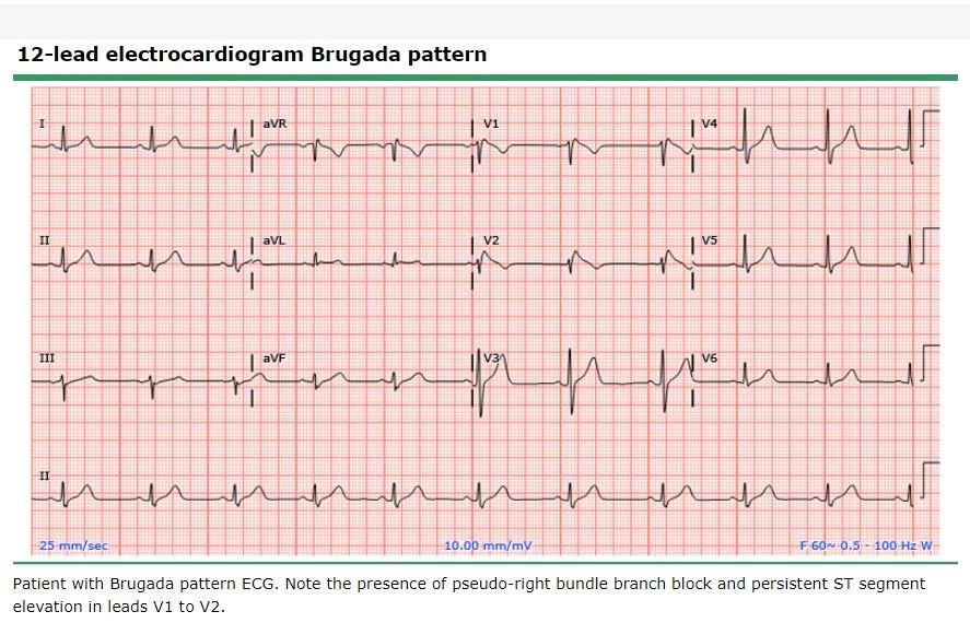 Síndrome de Brugada - uptodate.JPG
