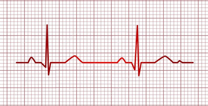 http://www.dreamstime.com/royalty-free-stock-image-electrocardiogram-track-image5117976