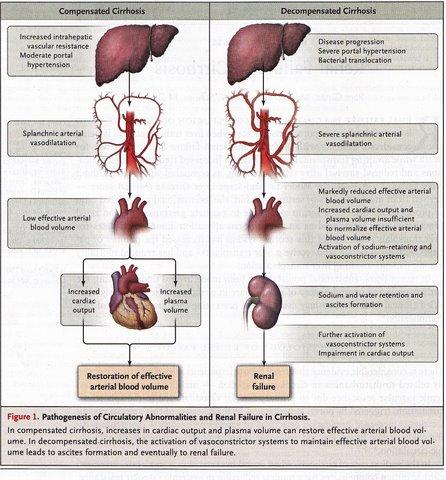 hepatorenal syndrome   neil kurtzman, Skeleton