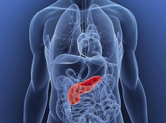 pancreatitis bissap y diabetes