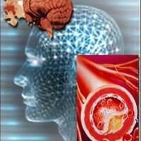 Дисциркуляторная энцефалопатия - симптомы и лечение