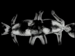 X-ray of Masha and Dasha showing them joined together at the pelvis with legs on the top and bottom and heads opposite on the left and right.