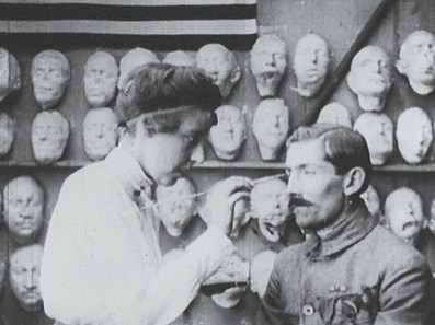 A woman paints a prosthetic on the patient's face.