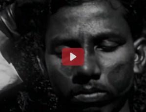 Leprosy in India