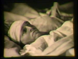 A man with a bandage on his head lies in a hospital bed.